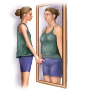 What Is Body Dysmorphic Disorder (BDD) And What Are Its Symptoms?